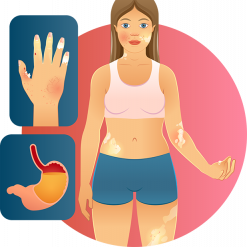 An illustration of a woman with some common symptoms of scleroderma. There are two images pulled out to illustrate specific symptoms. The image of a stomach filled with yellow fluid represents esophageal dysfunction. An illustration of a hand represents the occurance of ulcers, calcinosis, sclerodactyly, Raynaud's phenomenon, and telangiectasias.