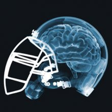 Cannabis for football-related head injuries