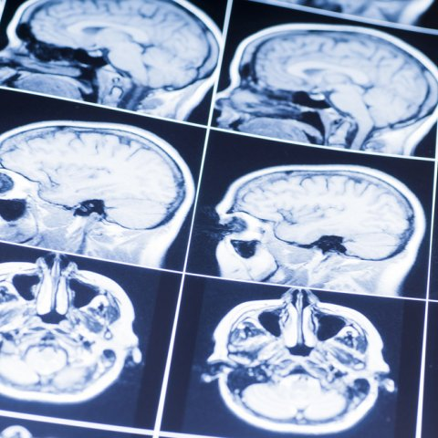 Image of an MRI brain scan printout showing several angle of the injured brain.