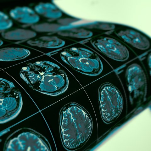 Image of brain scans