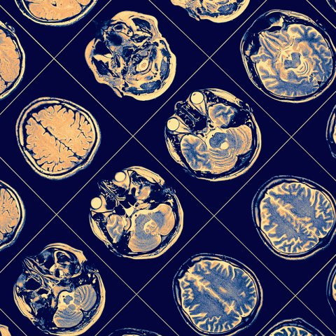 Image of brain scans that looks like wallpaper